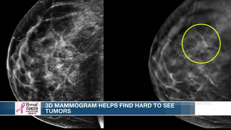 New technology unmasking breast cancer tumors that had been difficult to see